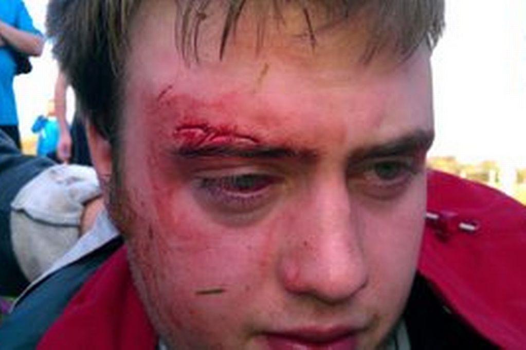 Il figlio 13enne perde il derby e il padre picchia l'arbitro